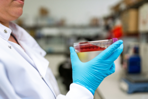 Enzyme Immunoassay (EIA)